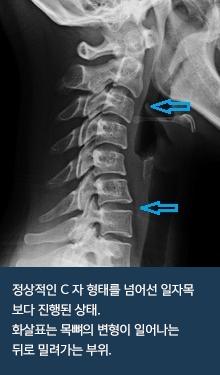 vertebra_03